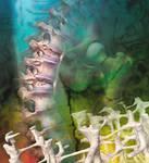 Osteoporosis: Prevención y Tratamientos