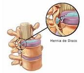 Cirugía para las Hernias Discales